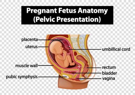 Pregnant Fetus Anatomy (Pelvic Presentation) illustration