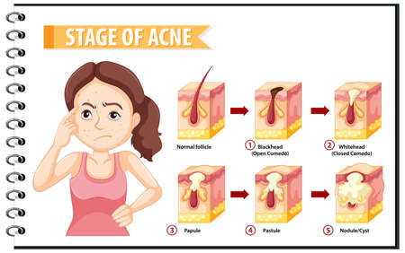 Stages of skin acne anatomy with a woman doing stressful pose illustration