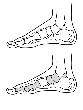 The structure of the legs with flat feet and normally feet  on a white background Illustration