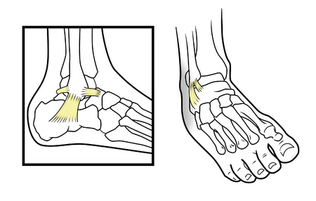 metatarsal: Dislocated ankle diagram on a white background