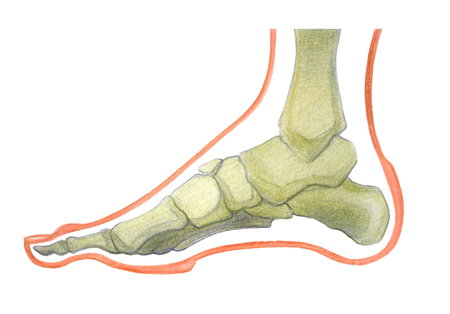 plantar: Scheme of foot with  the corn and plantar callosity