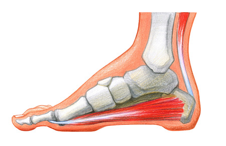 Scheme of foot with the corn and plantar callosityon a white background