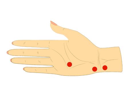 De binnenkant van de rechterhand van de vrouw met stippen voor acupunctuurmassage. Geïsoleerd op witte achtergrond Stockfoto