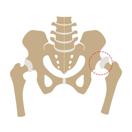 Hip dysplasia, flat design. Illustration, Isolated on white background.