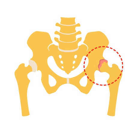 Fragment of the structure of the human skeleton. Pelvic girdle and hips. Coxarthrosis. Destruction of connective cartilaginous tissue. Silhouette. Sign.  Flat design