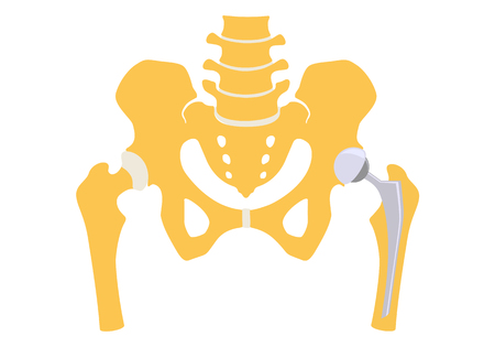 Total hip replacement. Vector illustration.