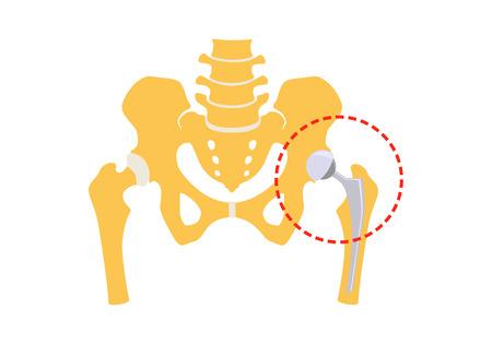 Remplacement total de la hanche. Illustration vectorielle. Isolé sur fond blanc