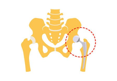 Total hip replacement. Vector illustration. Isolated on white background Ilustração