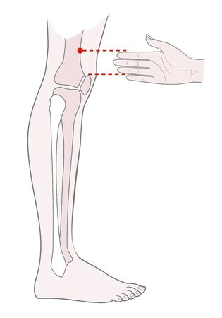 Active acupuncture points on the legs:  above the knee. Vector illustration.