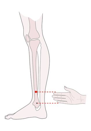 Active acupuncture points on the legs: bove the ankle. Vector illustration. Vector Illustration