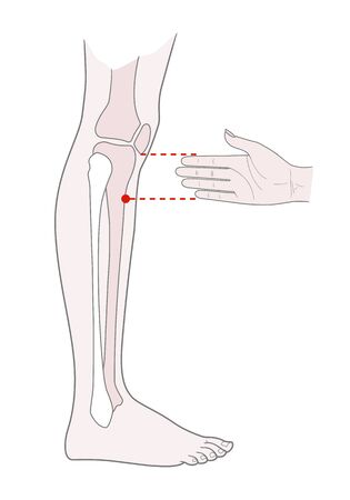 Active acupuncture points on the legs:  below the knee. Vector illustration.