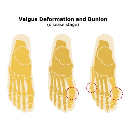Age and valgus deformity of the thumb. Bunion. Stages of development of the disease. Silhouette of the foot bones. Reklamní fotografie