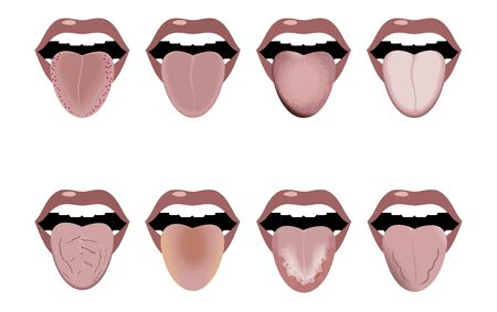 Definition of the disease by tongue. Open mouth and tongue sticking out. Changes in color and appearance in diseases. Vector image. Ilustrace