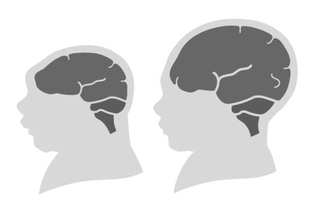 Silhouette image of the head and skull of a newborn child with a normal cranium and with microcephaly and severe microcephaly. Virus of Zika. Flat design Imagens