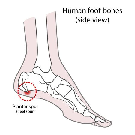 Plantar spur (calcaneal spur). Human foot bones. Vector illustration Isolated on a white background