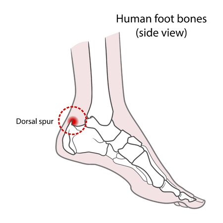 Dorsal spur (calcaneal spur). Human foot bones. illustration Isolated on a white background