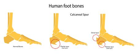 Human foot bones. Plantar and dorsal spur (calcaneal spur). Illustration