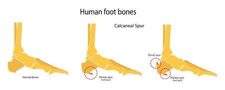 Human foot bones. Plantar and dorsal spur (calcaneal spur). Vector illustration Imagens