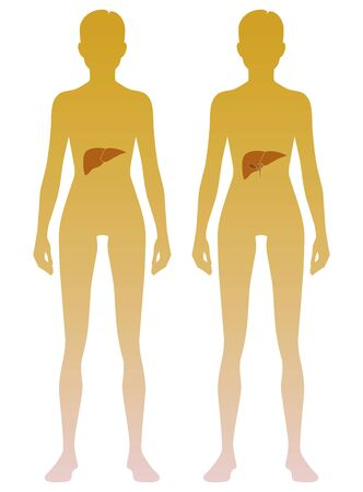 Woman silhouette with liver and gall bladder location on body. Illustration