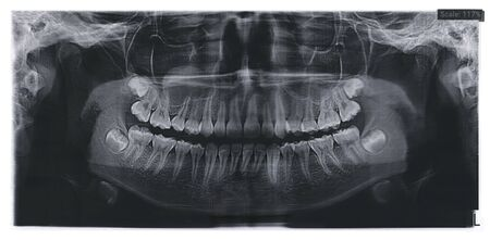 Dental x-ray for teeth surgery with the rudiments of wisdom teeth