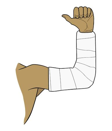 Male hand in a plaster cast. Fracture and healing. Vector illustration.