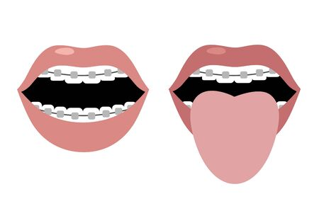 Open mouth with braces and tongue sticking out. Vector image. Flat design Stock Illustratie