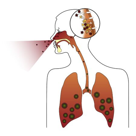 Colds and inflammation. Flu. Silhouette of human lungs with coronavirus. Pneumonia. Vector illustration