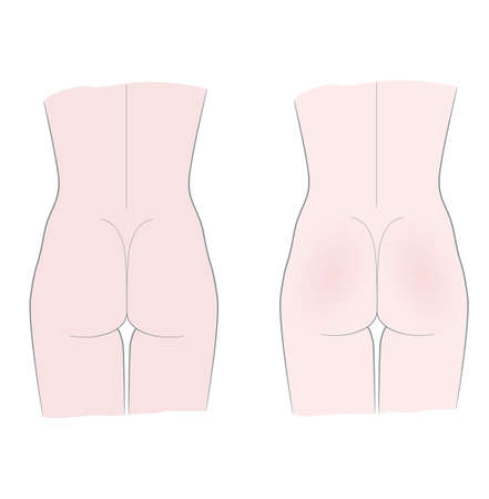 Medical template mockup. Female torso rear view. Buttocks. Isolated on a white background.