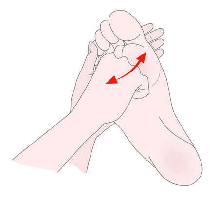 Foot massage. Bunion. Hallux valgus or bunion formation of the foot. Female hands massage the foot. Kneading and prevention of diseases of the bones of the thumb. Illustration 版權商用圖片