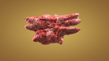 colon cancer: Tumor