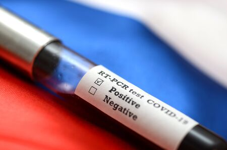 Coronavirus 2019-nCoV Blood Sample. Epidemic virus Respiratory Syndrome stock photo . Corona virus outbreak in Russia. Stock photo of test tube with Blood Test (novel Coronavirus 2019 disease,COVID-19,nCoV)