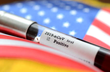 Coronavirus 2019-nCoV Blood Sample. Epidemic virus Respiratory Syndrome stock photo . Corona virus outbreak in USA. Stock photo of test tube with Blood Test (novel Coronavirus 2019 disease,COVID-19,nCoV)