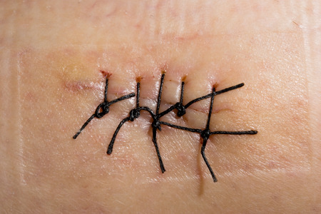 Close-up picture of a scar with stitch Stock Photo