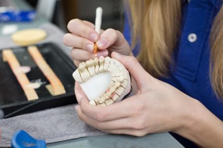 Primo piano di un odontotecnico porcellana applicando ad uno stampo dentizione in un laboratorio