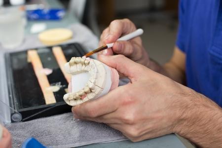 orthodontie: Gros plan d'un technicien dentaire application de la porcelaine dans un moule dentition dans un laboratoire