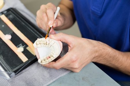 inlays: Closeup of a dental technician applying porcelain to a dentition mold in a lab