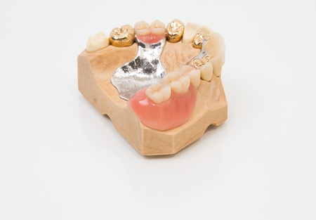 prosthetics: Sophisticated dental prosthesis with gold teeth, bridges and artificial teeth on a mold