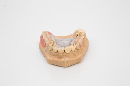 onlays: Sofisticado prótesis dental con dientes de oro, puentes y dientes artificiales en un molde