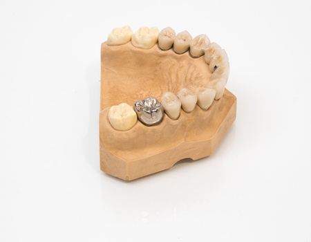 onlays: artificial gold tooth on a dental mold Stock Photo