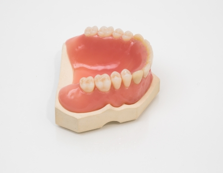 inlays: Artificial denture manufactured in a dental lab Stock Photo