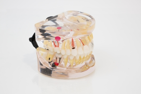 Plastic model of human denture for presentations photo