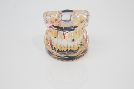 onlays: Modelo pl�stico de la dentadura humana para presentaciones