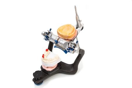 onlays: Articulador en un laboratorio dental con moho o dentadura artificial