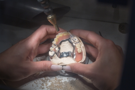 veneer: Dental technician manufacturing a prosthesis with a laser