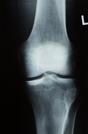 roentgen: X-ray photograph or Röntgen image of a human knee with tibia, femur, fubula and patella