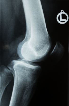 X-ray photograph or R�ntgen image of a human knee with tibia, femur, fubula and patella
