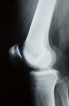 patella: X-ray photograph or R�ntgen image of a human knee with tibia, femur, fubula and patella