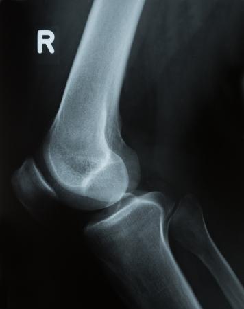 patella: X-ray photograph or Röntgen image of a human knee with tibia, femur, fubula and patella