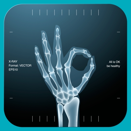 X-ray of both human hand (OK!), vector Eps10 illustration. Çizim