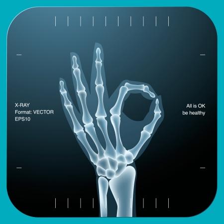 X-ray van zowel menselijke hand (OK!), vectoreps10 illustratie.